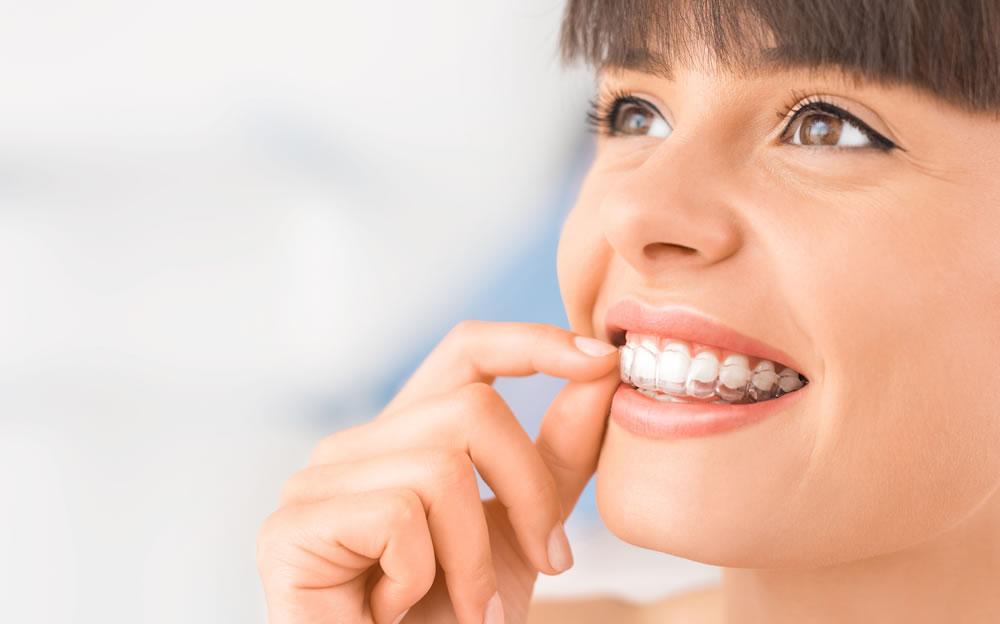 Ortodoncia Invisible 1