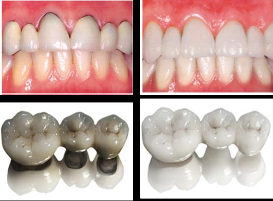 tratamiento dental coronas zirconio