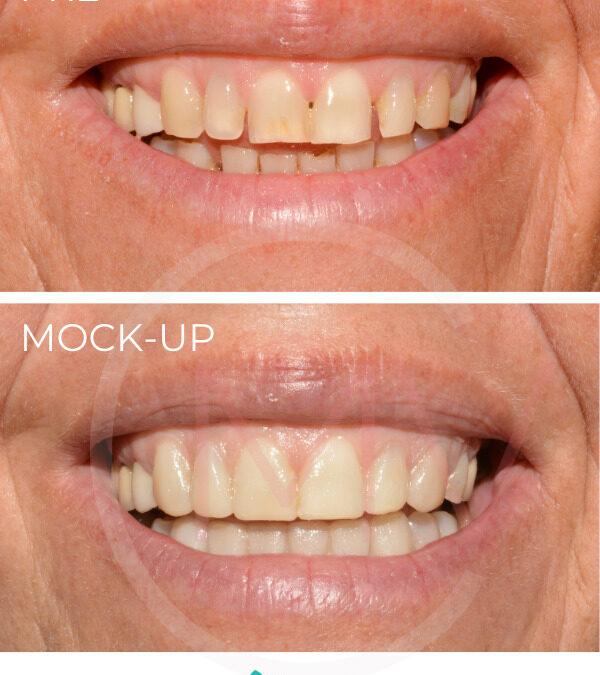 Carillas dentales mock-up