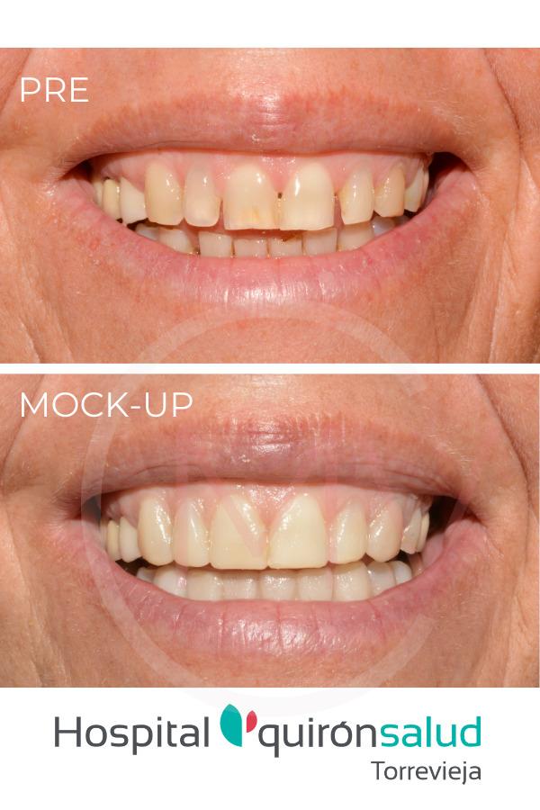 ¿Me quedarían bien unas carillas dentales? Compruebe el resultado con una prueba mock-up.