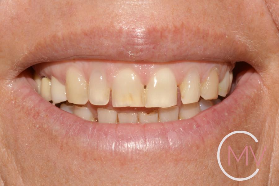 carillas dentales inicial