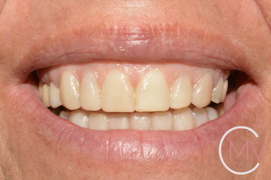 prueba estética de carillas dentales o mock-up